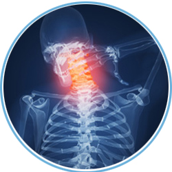 boca-raton-chiropractor-neck-pain